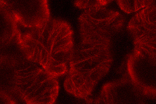 Microtubules visualised by tagging with mCherry in mesophyll cells in an Arabidopsis leaf